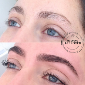 brow correction before and after