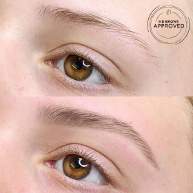 brow treatment before and after